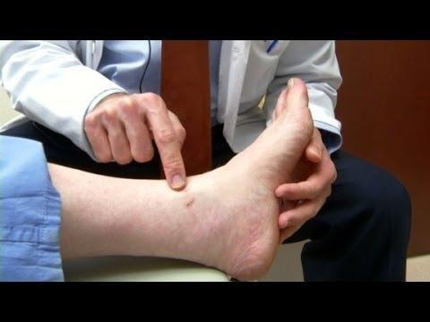 Diabetic Rash On Legs Pictures Diabetestalk Net