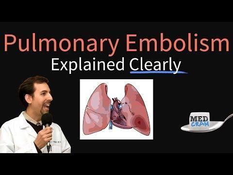 Diabetes Risk Factor Pneumonia