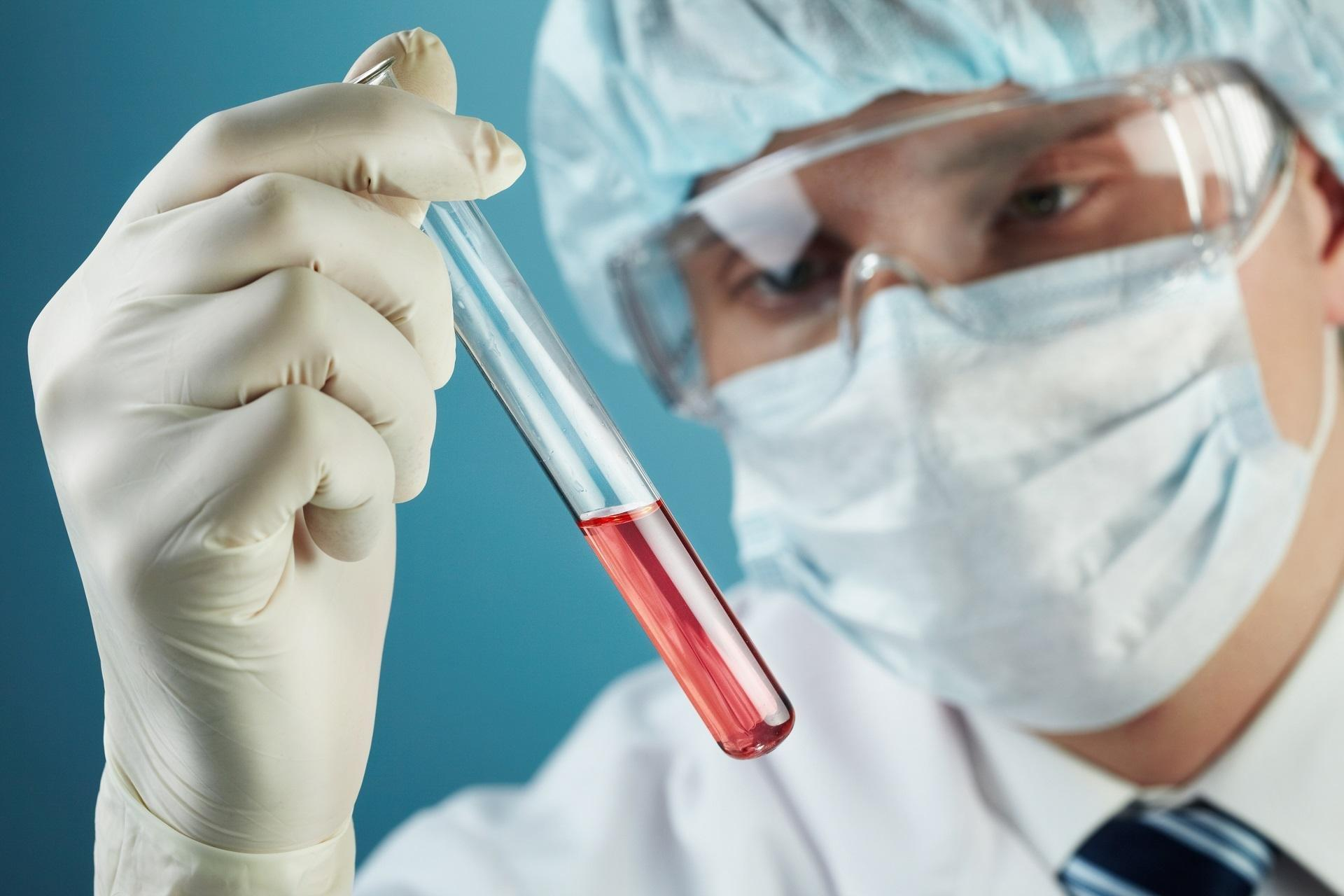 Hba1c Blood Test Results Explained
