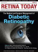 Diabetic Cataract Surgery