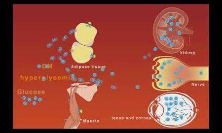 Diabetes Mellitus Mnemonics