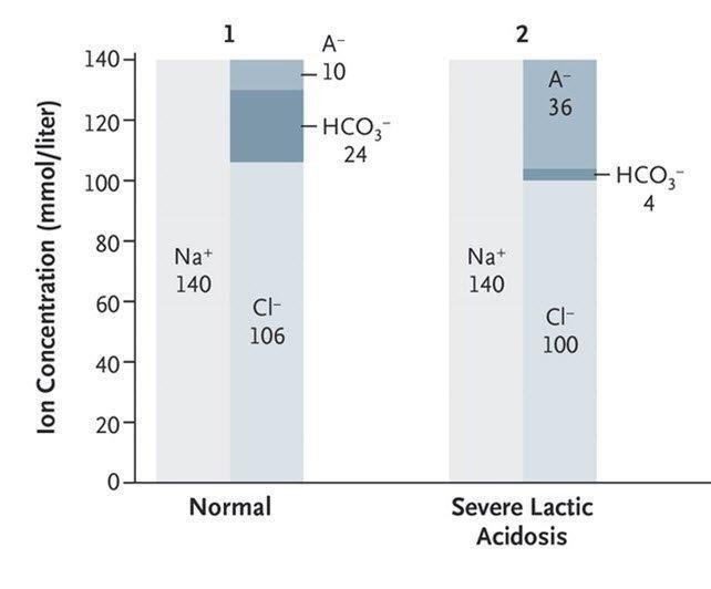 Lactic Acidosis - Now@nejm Now@nejm
