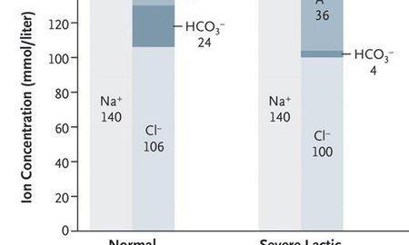 Metabolic Acidosis And Vasopressors