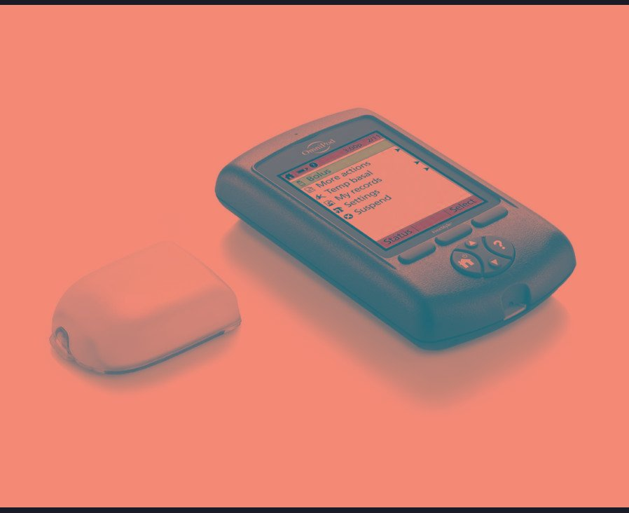Insulin Pump Pros And Cons