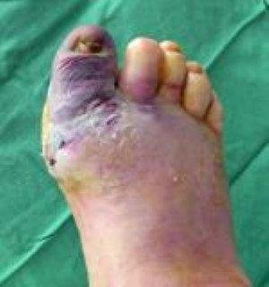 Why Do Diabetics Have Bad Feet?