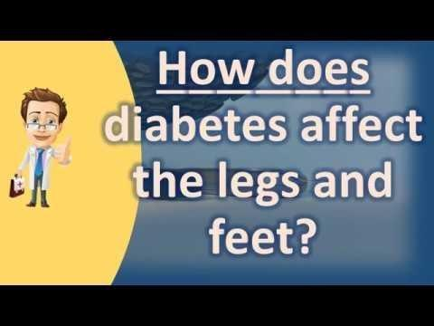How Does Diabetes Affect The Legs And Feet?