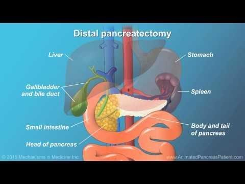 Pancreas Removal Life Expectancy