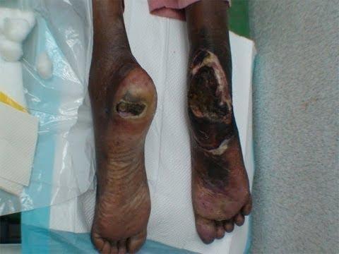 Type 2 Diabetes Mellitus- Disease, Diagnosis And Treatment