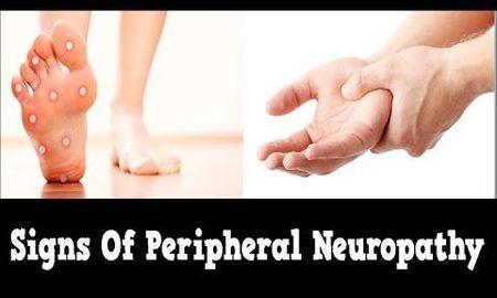 Can Diabetes Cause Peripheral Neuropathy?