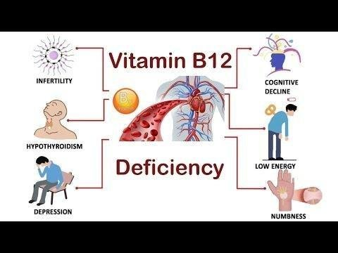 Type 1 Diabetes: Vitamin D Deficiency Occurs In Early Stage