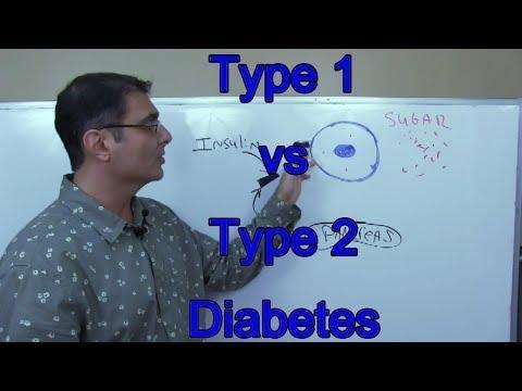 Compare The Basic Treatments For Type 1 And Type 2 Diabetes.