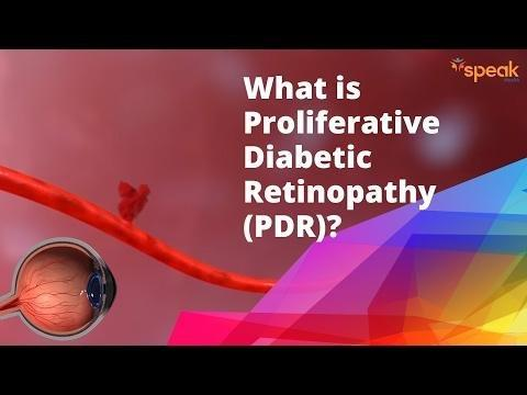 Proliferative Diabetic Retinopathy Treatment