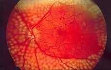 Icd-10-cm Code E11.351 Type 2 Diabetes Mellitus With Proliferative Diabetic Retinopathy With Macular Edema