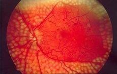 Mild Nonproliferative Diabetic Retinopathy Without Macular Edema Icd 10