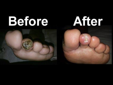 Prescription Diabetic Foot Cream