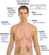 What Are Benefits Of Diabetes Surgery?