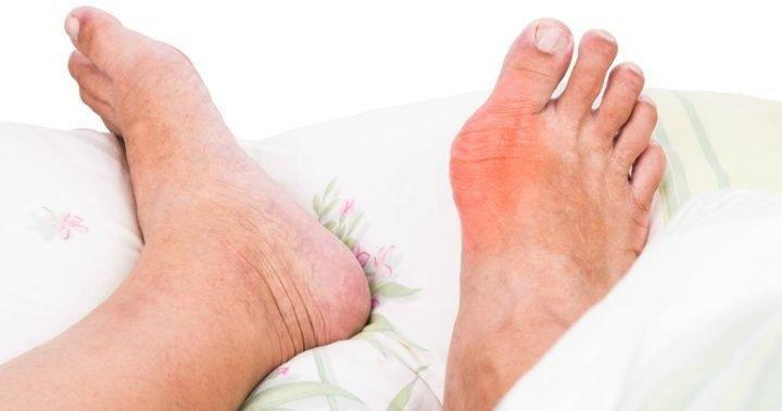 The Ketogenic Diet Is A Natural Treatment For The Symptoms Of Gout