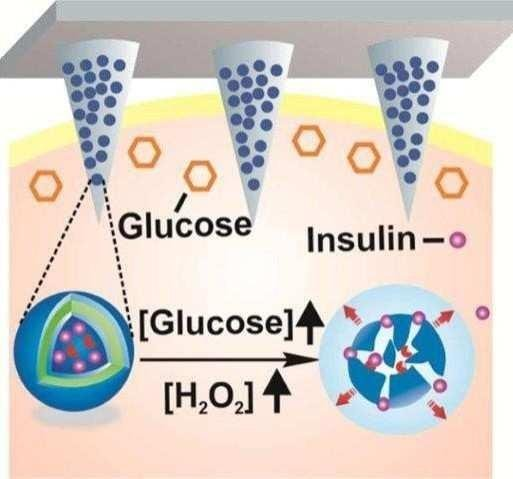 Toward A Smart Patch That Automatically Delivers Insulin When Needed