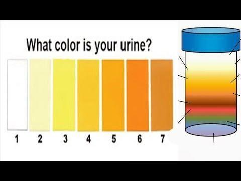 Urine Color And Diabetes
