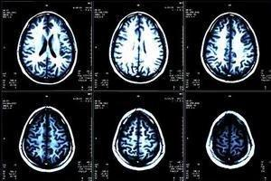 How Diabetes Affects Your Brain
