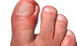 Treating Infected Ingrown Nails | Howstuffworks