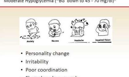 Reactive Hypoglycemia