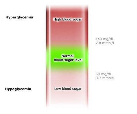 Hyperglycemia And Hypoglycemia In Type 1 Diabetes