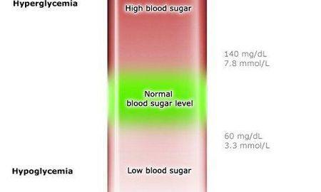 Is Diabetes Hypoglycemia Or Hyperglycemia?