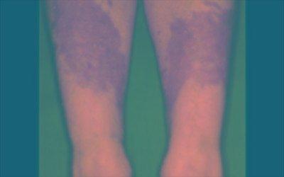 Dermatologist Basking Ridge - 12 Ridge St., Basking Ridge, Nj, 07920 - (908) 766-7546