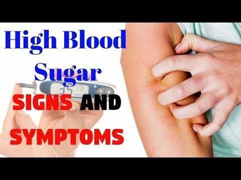 Nonfasting Glucose Level Of 123