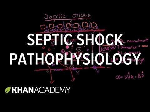 Septic Shock: Practice Essentials, Background, Pathophysiology