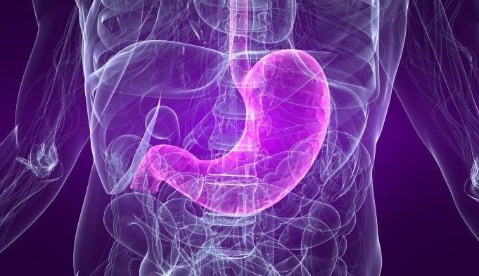 Metformin Induced Gastritis