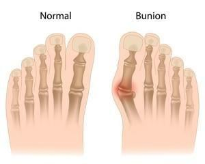 Diabetes-related Foot And Ankle Problems