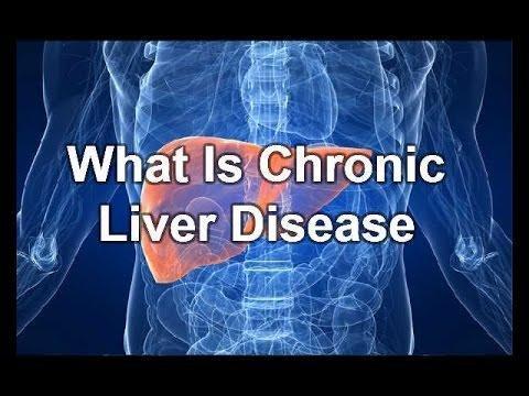 Diabetes In Chronic Liver Disease