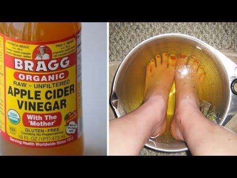 Can Diabetics Soak Their Feet In Apple Cider Vinegar
