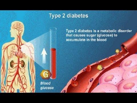 What Is The Best Treatment For Type 2 Diabetes?
