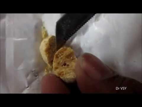 Can Diabetics Eat Soya Chunks