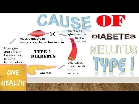 Type 1 Diabetes Causes And Risk Factors