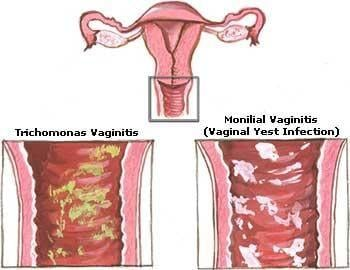 Diabetic Yeast Infection Home Remedies