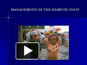 Ppt Management Of The Diabetic Foot Powerpoint Presentation   Free To View - Id: 15df2c-zwnlo