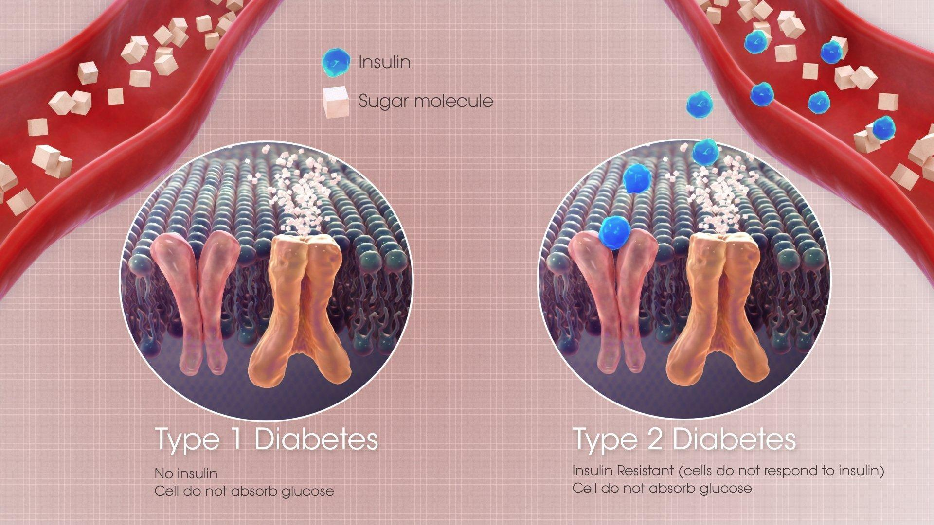 Does Prediabetes Mean That You'll Get Diabetes?