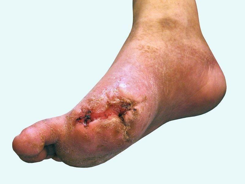 Diabetic Foot Care Nursing Care Plan