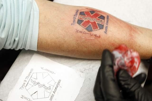 Tattoos Replacing Medical-alert Bracelets For Those With Diabetes, Other Ailments
