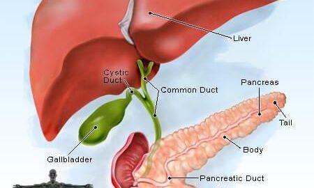 Pancreas Cancer Symptoms