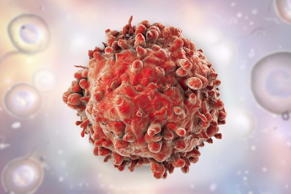Leukemia: Cancer cells killed off with diabetes drug