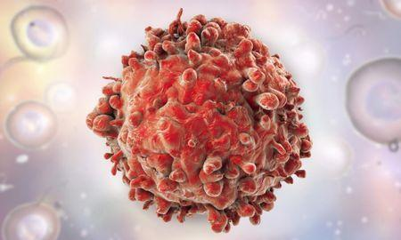 Leukemia: Cancer cells killed off with diabetes drug