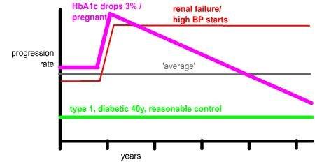Retinopathy Progression And Sudden Lowering Of Hba1c , Etc