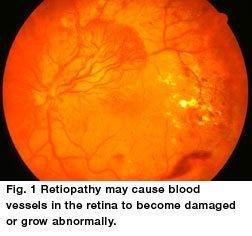 Diabetes Mellitus And Diabetic Retinopathy