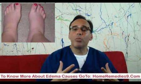 Diabetes Feet Symptoms