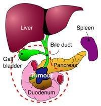 Having An Operation On The Pancreas: Faq
